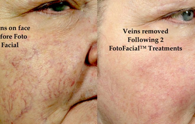 Foto Facial Treatment on Veins Before and After
