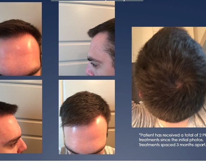 PRP Hair Loss after