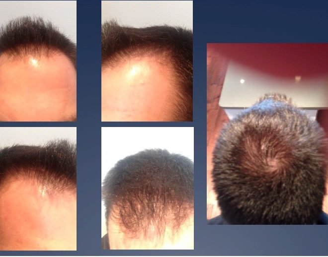 PRP Hair loss before treatment