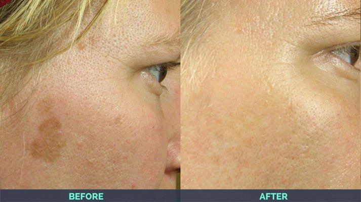 age spots removed after IPL laser skin treatment
