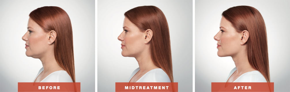 adra-kybella-before-after-asheville