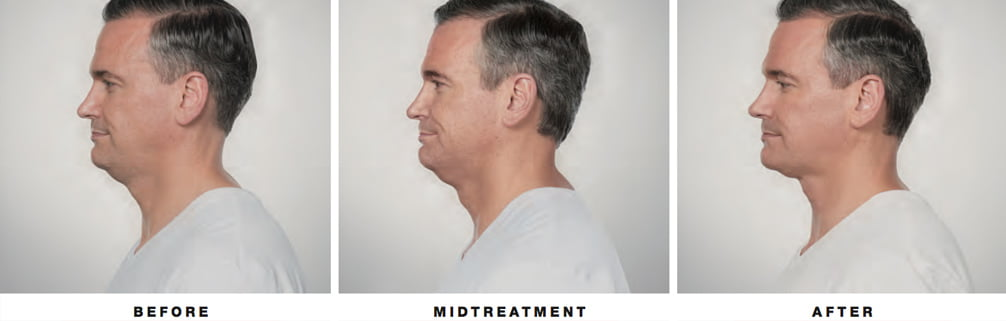 andy-kybella-before-after-asheville