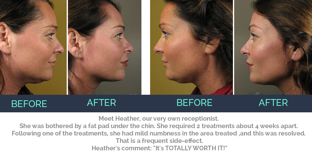 heather-kybella-before-after3