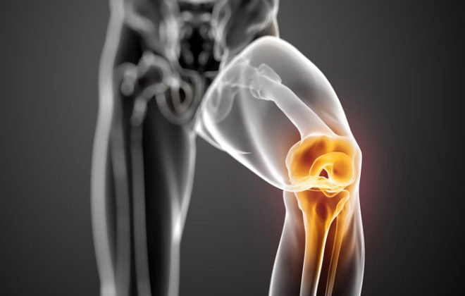 knee-pain-prp-therapy-asheville