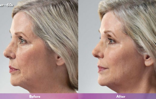 kristin-juvederm-before-after