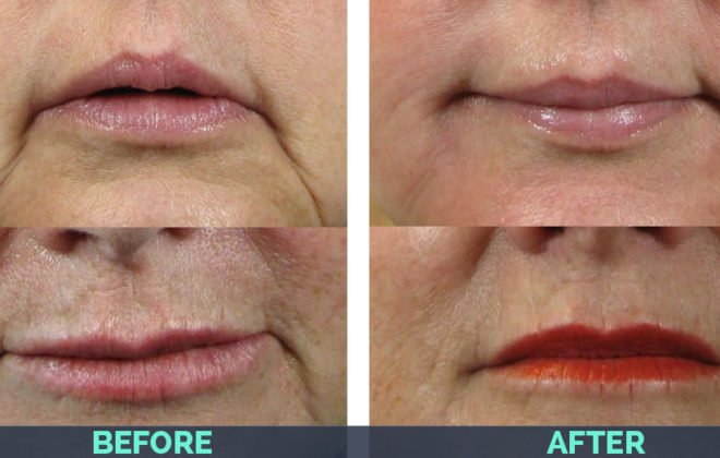 marionette-juvederm-before-after-asheville-nc