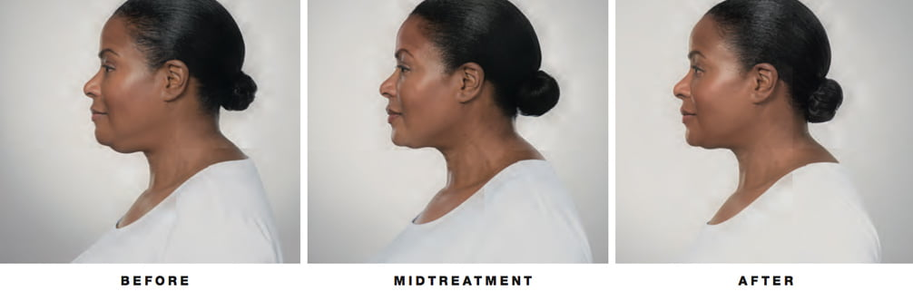 ponti-kybella-before-after-asheville-med-spa