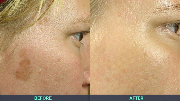 age spots removed after IPL laser skin treatment