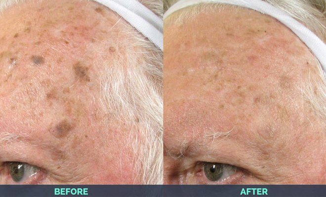 IPL-age-spots-before-after-2