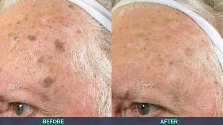 Laser Skin Rejuvenation in Asheville NC | CO2 Resurfacing & IPL