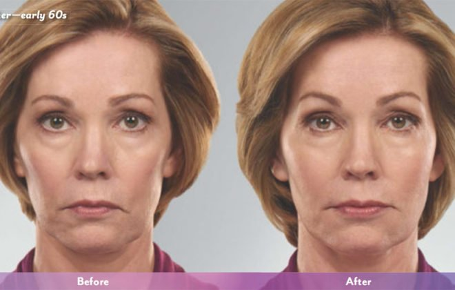 Lou-juvederm-before-after-asheville