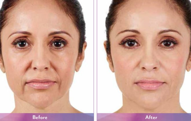 abbey-juvederm-xc-before-after-asheville