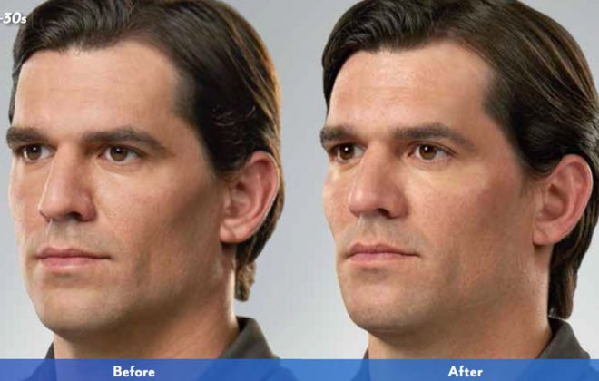 alex-juvederm-xc-voluma-before-after-asheville-nc