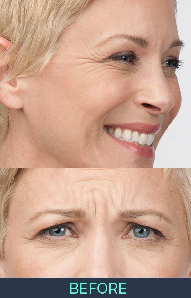 angie is showing her wrinkles before a botox procedure