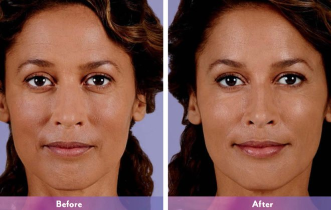 chanita-juvederm-before-after-asheville-nc