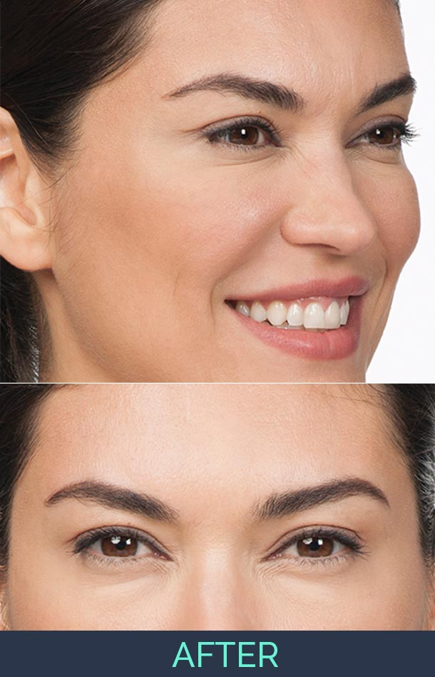 cynthia is a middle age woman who is very pleased and showing results of her botox