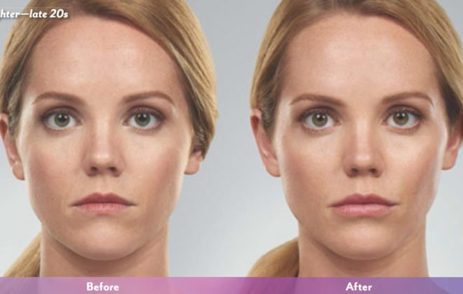 erin-juvederm-before-after