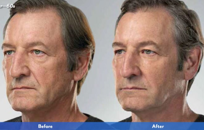 jack-juvederm-xc-voluma-before-after-asheville