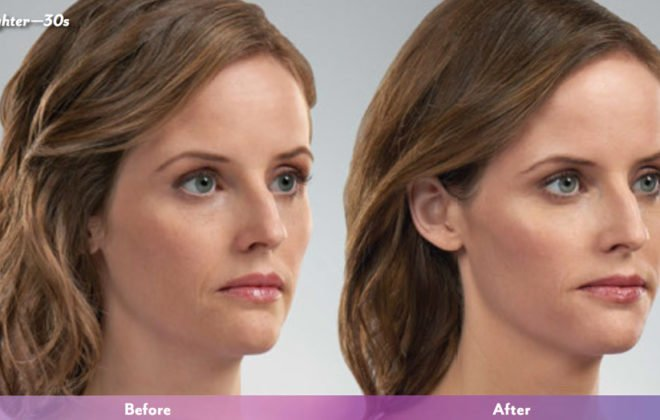 lauren-juvederm-before-after-asheville-treatment