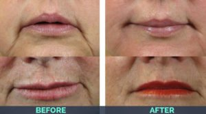 asheville nc woman showing her lips after treatmetnt from botox