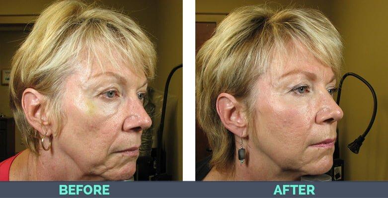 woman with prp platelet rich plasma treatment