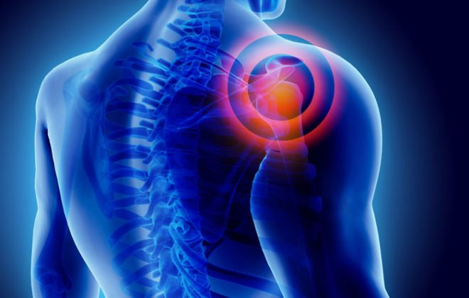 shoulder-pain-prp-therapy-asheville