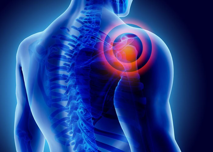 picture of shoulder pain that can be fixed with prp platelet rich plasma therapy