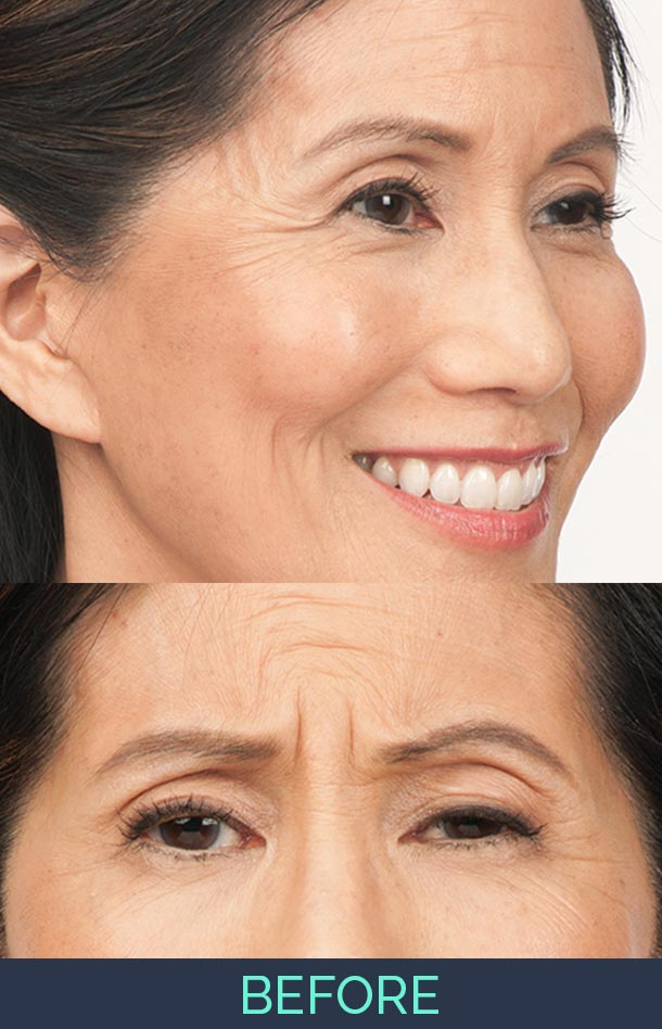 susan is smiling while pictures shows before and after botox