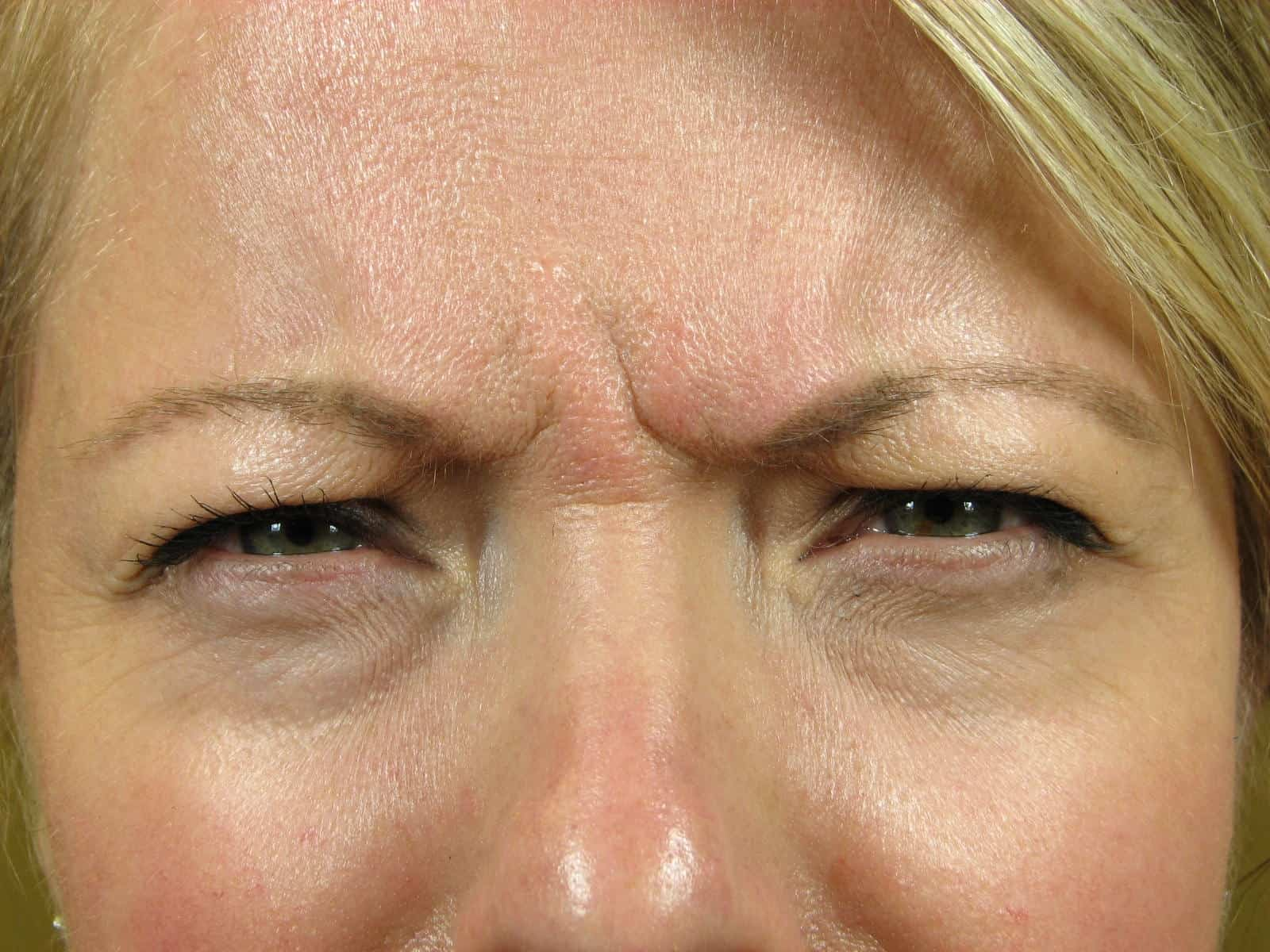 The REAL Skinny on Botox!