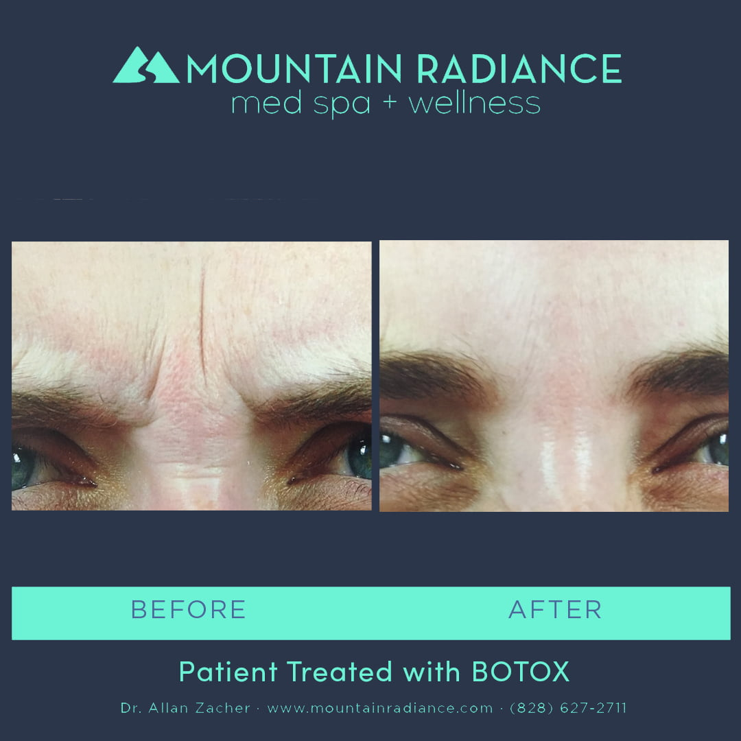 Botox Med Spa in Asheville NC | Cosmetic Injectables by Board