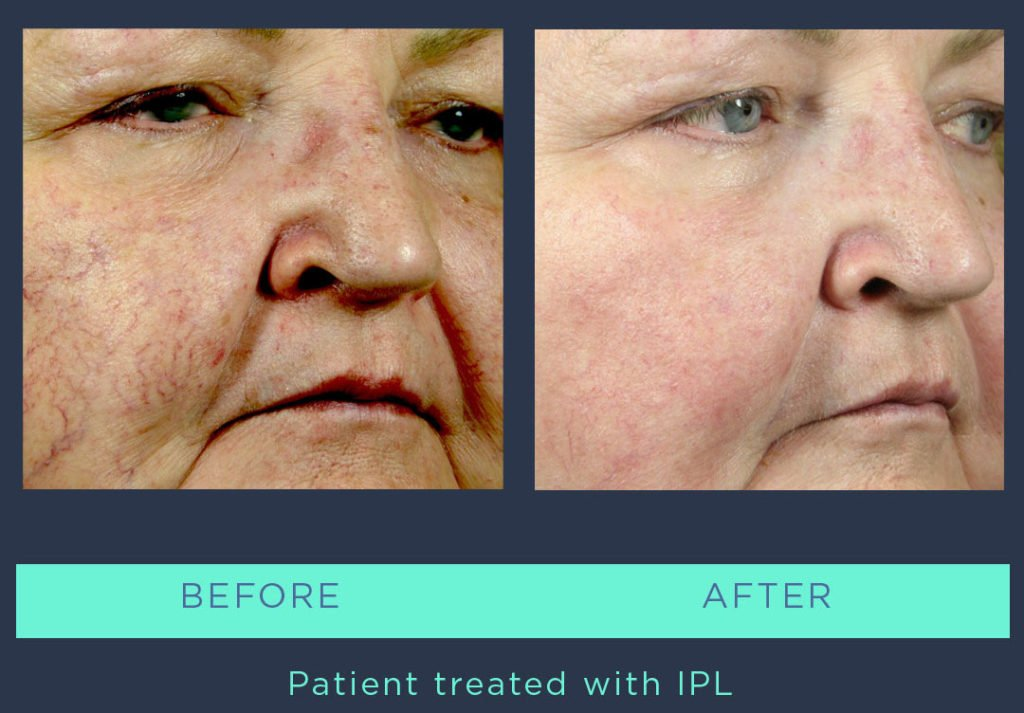MRS-2019-Instagram-Banda-Temp - IPL