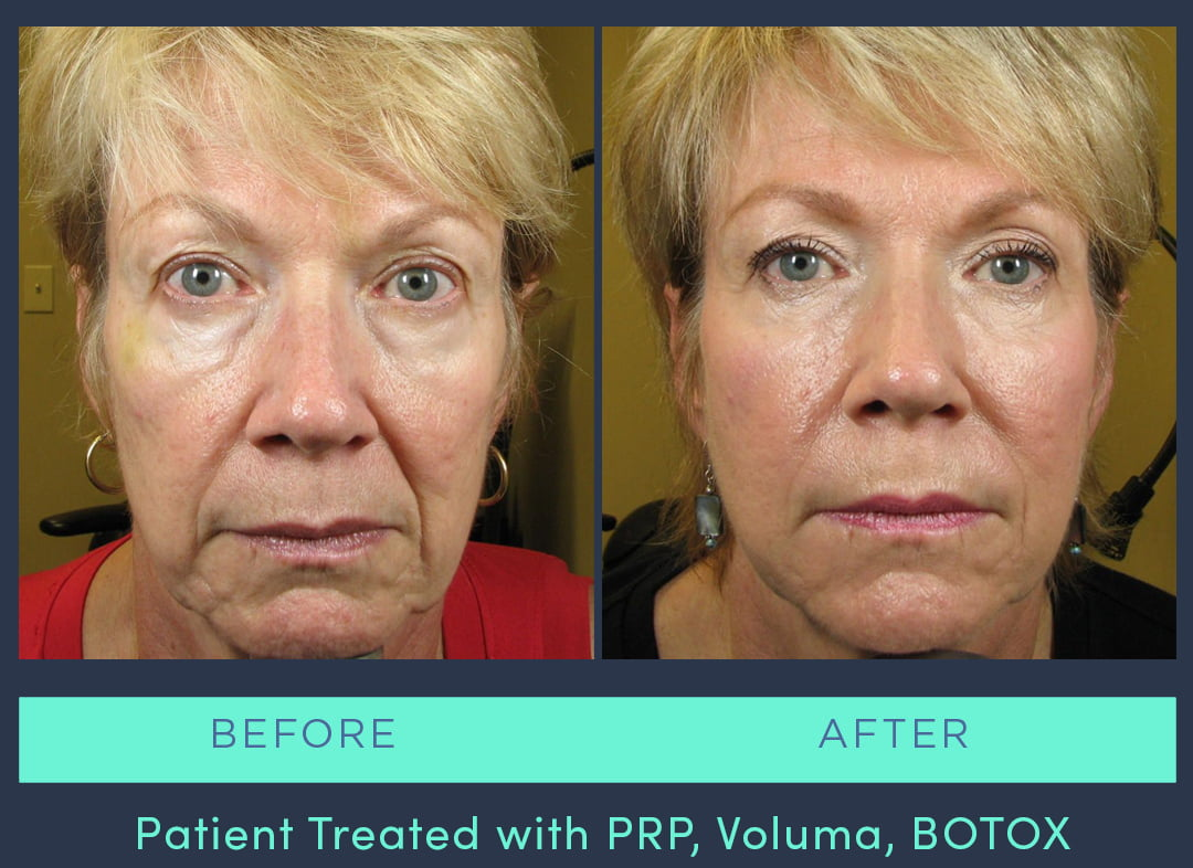 MRS-2019-PRP Voluma BOTOX
