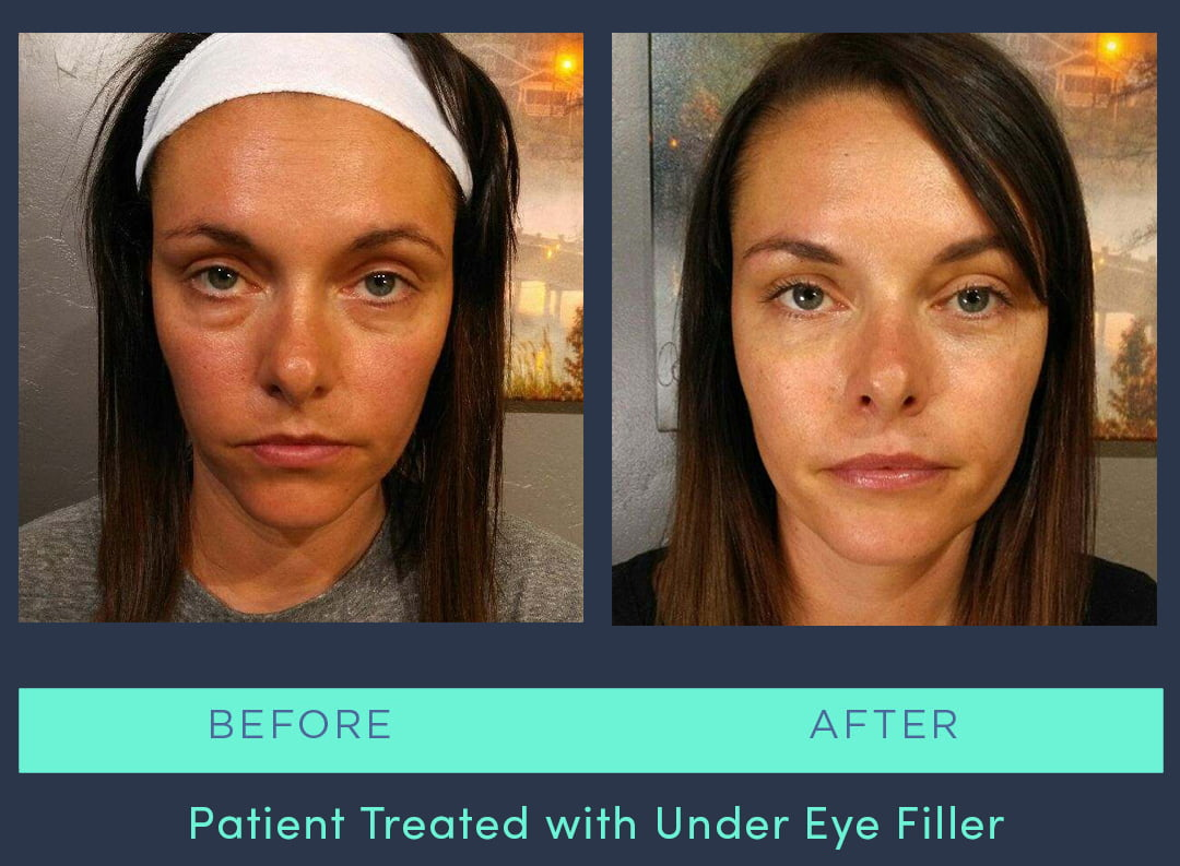 MRS-2019-Under Eye Filler 2