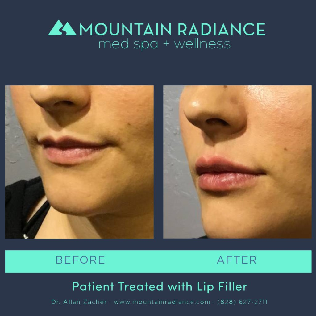 MRS-2019-Lip Filler