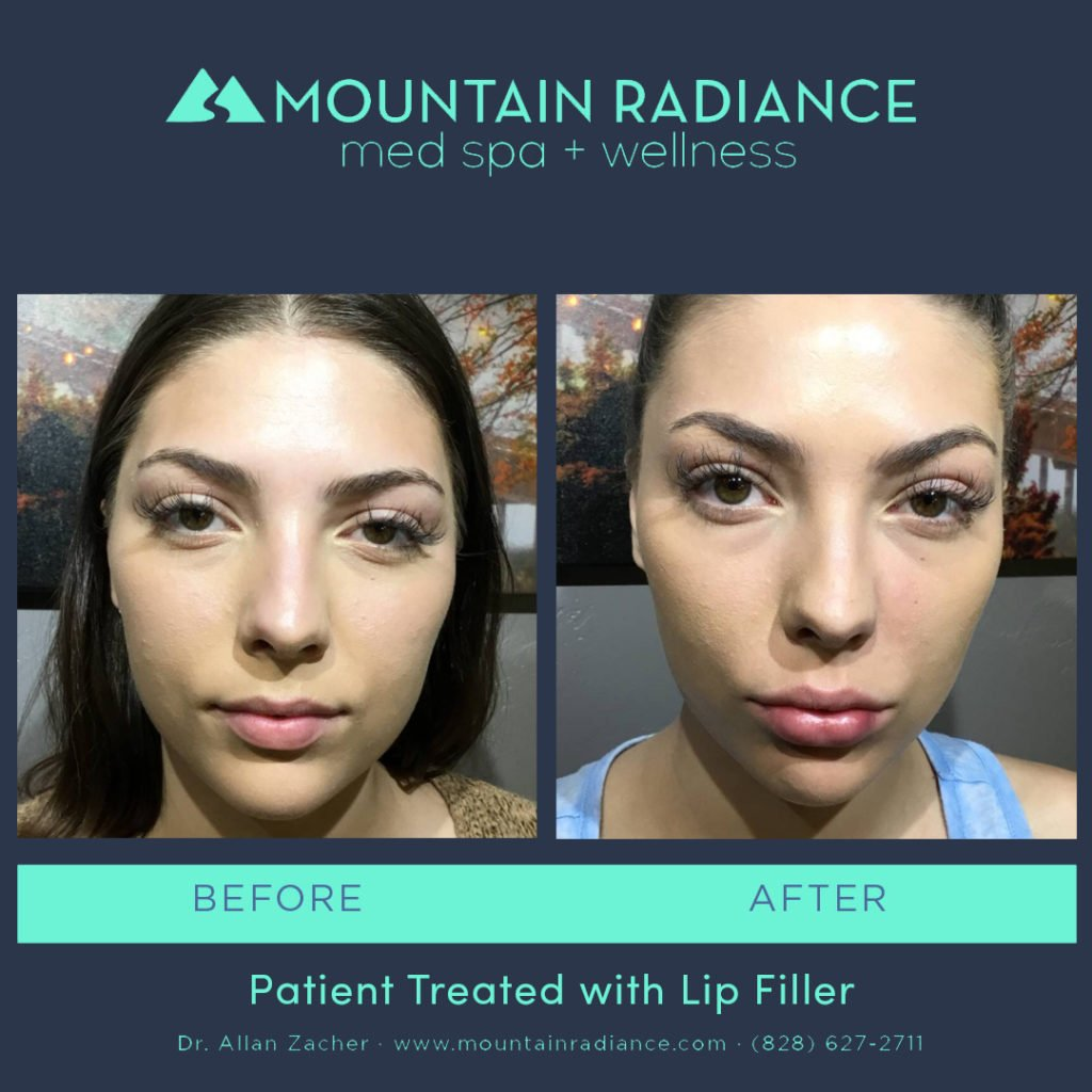 MRS-2019-Lip Filler 3