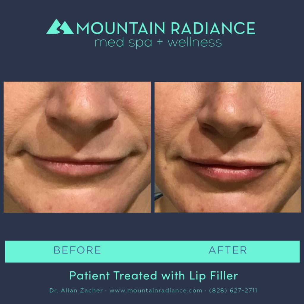 MRS-2019-Lip Filler 4