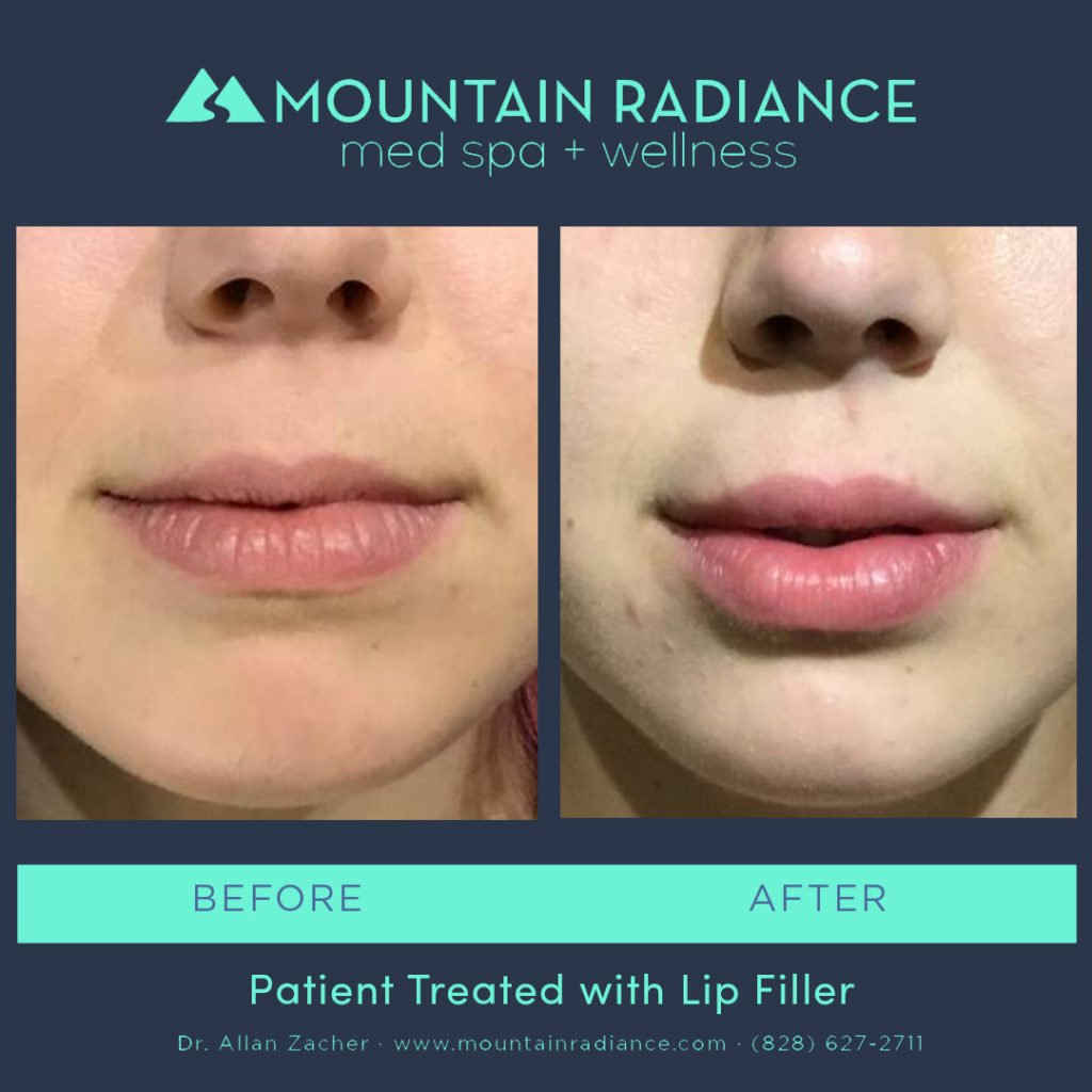 MRS-2019-Lip Filler 5