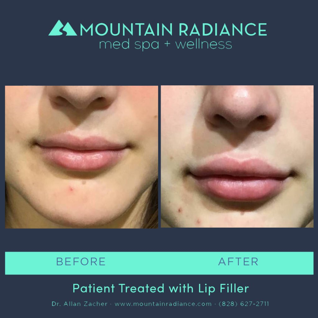 MRS-2019-Lip Filler 6