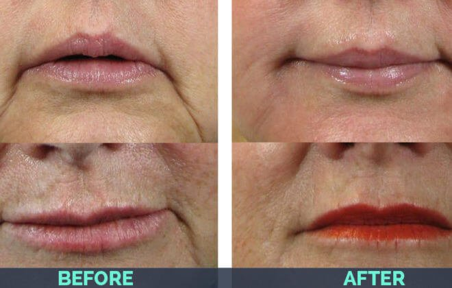 marionette-juvederm-before-after-660x420